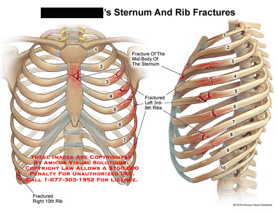 amicus,injury,chest,rib,sternum,bone,fracture,mid-body,3rd-8th,10th