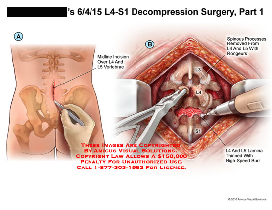 amicus,surgery,decompression,spine,spinal,column,l4,l5,s1,vertebrae,midline,incision,spinous,processes,removed,rongeurs,lamina,thinned,high-speed,burr