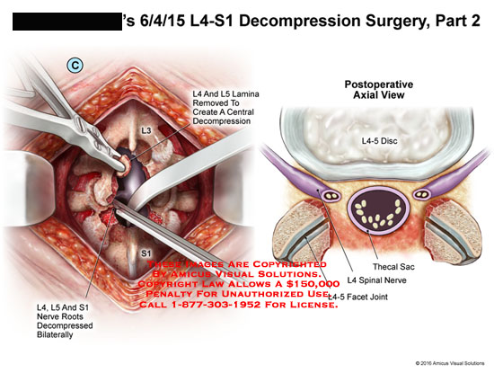 amicus,surgery,decompression,spine,spinal,column,l4,l5,s1,vertebrae,lamina,removed,central,depression,nerve,roots,decompressed,bilaterally,postoperative,view,l4-5,disc,thecal,sac,facet,joint