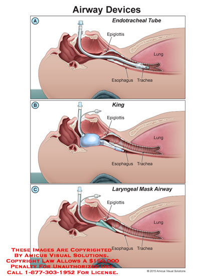 amicus,medical,airway,devices,endotracheal,tube,epiglottis,esophagus,trachea,lung,King,Laryngeal,mask
