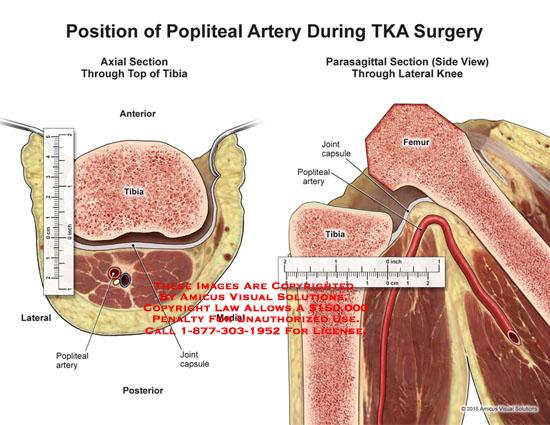 amicus,surgery,popliteal,artery,TKA,joint,capsule,femur,tibia
