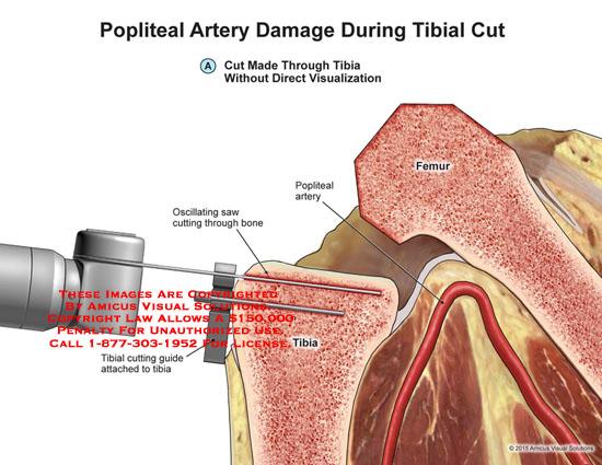 amicus,surgery,popliteal,artery,damage,oscillating,saw,tibial,tibia,femur