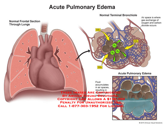 amicus,injury,anatomy,comparison,lungs,terminal,bronchiole,frontal,section,normal,acute,pulmonary,edema,air,space,gas,exchange,oxygen,carbon,dioxide,fluid,accumulates,impared