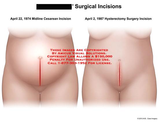 amicus,surgery,incisions,female,abdominal,pelvic,midline,cesarean,hysterectomy,uterus