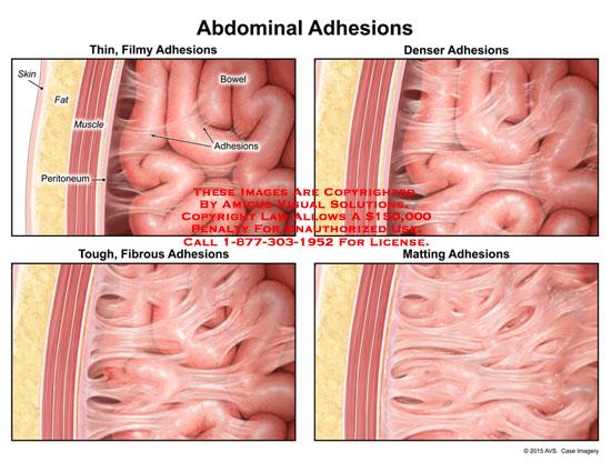 amicus,injury,anatomy,comparison,abdominal,adhesions,bowel,peritoneum,thin,filmy,denser,tough,fibrous,matting