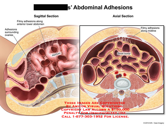 amicus,injury,midline,anterior,lower,abdomen,small,bowel,jejunum,sagittal,axial,section,abdominal,adhesions,filmy,surrounding,ovaries