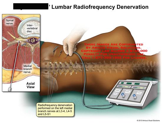 amicus,medical,denervation,posterior,axial,view,lumbar,sacral,spine,back,vertebrae,radiofrequency,spinal,nerve,medial,branch,intervertebral,disc,performed,l3-4,l4-5,l5-s1