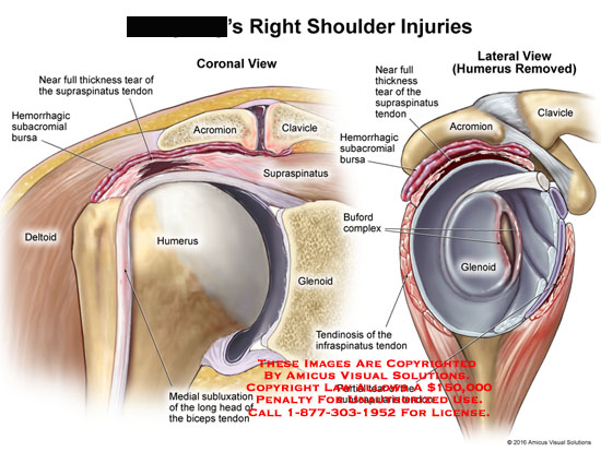 amicus,injury,shoulder,supraspinatus,acromion,clavicle,deltoid,humerus,glenoid,subluxation,long head,biceps,tendon,subacromial,bursa,tendinosis,infraspinatus,hemorrhagic,buford,complex