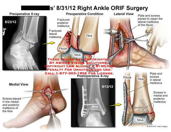 amicus,surgery,ankle,fibula,tibia,talus,fractured,lateral,medial,posterior,malleolus,orif,plate,screws,repair,preoperative,postoperative,x-ray,view