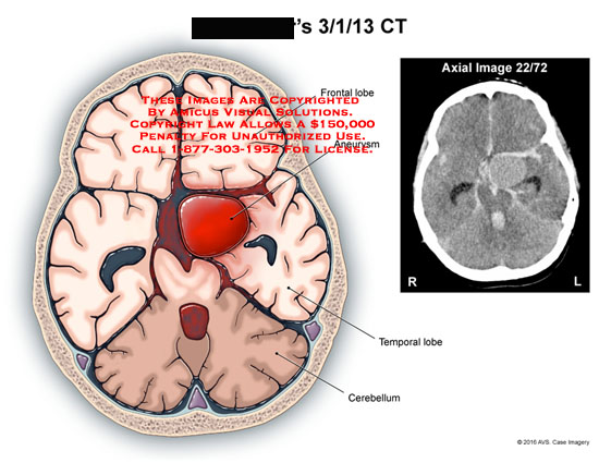 amicus,injury,ct,aneurysm,brain,frontal,lobe,temporal,lobe,cerebellum,axial,image