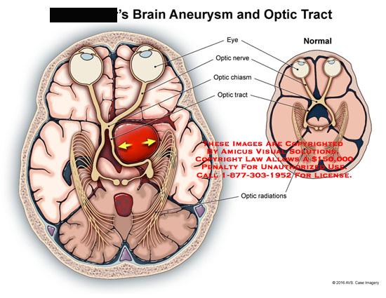 amicus,injury,brain,aneurysm,optic,tract,normal,comparison,eye,nerve,radiations,chiasm,displaced