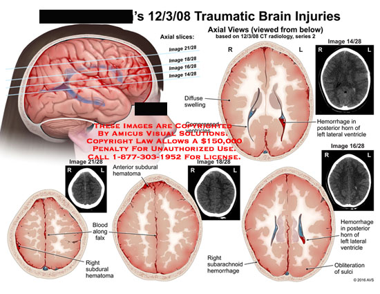 amicus,injury,brain,traumatic,axial,view,slices,ct,radiology,image,diffuse,swelling,compressed,ventricles,hemorrhage,posterior,horn,lateral,blood,along,falx,subdural,hematoma,subarachnoid,obliteration,sulci