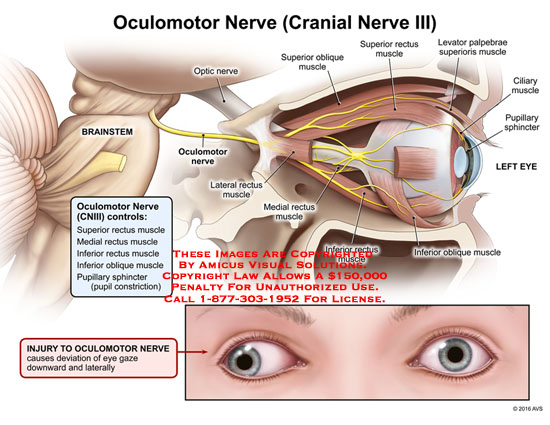 amicus,anatomy,injury,oculomotor,optic,nerve,cranial,iii,brainstem,eye,controls,superior,rectus,muscle,medial,inferior,oblique,pupillary,sphincter,pupil,constriction,lateral,ciliary,levator,palpebrae,superioris,deviation,gaze,downward,laterally