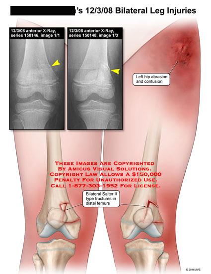 amicus,injury,bilateral,leg,hip,abrasion,salter,II,distal,femur,x-ray