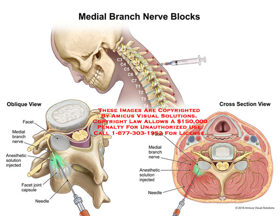 amicus,medical,injections,neck,nerve,block,oblique,cross,section,view,facet,medial,branch,nerve,anesthetic,solution,joint,capsule,needle