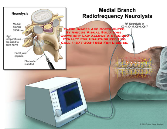 amicus,medical,radiofrequency,rf,neurolysis,medial,branch,nerve,high,temperatures,burn,facet,joint,capsule,electrode,inserted,c3-4,c4-5,c5-6,c6-7
