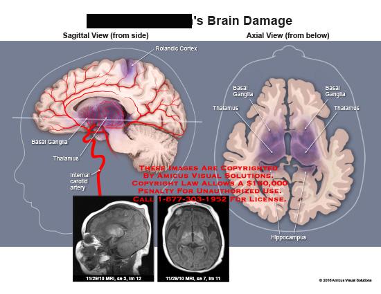 amicus,injury,radiology,brain,damage,saggital,axial,mri,basal,ganglia,thalamus,rolandic,cortex,hippocampus