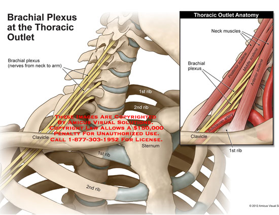 amicus,anatomy,brachial,plexus,thoracic,outlet,plexus,clavicle,sternum,1st,2nd,rib,neck,muscles,anterior,middle,posterior,scalene
