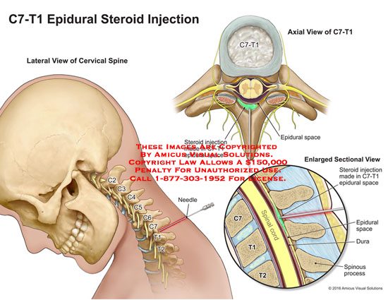 amicus,medical,injections,epidural,C7,T1,cervical,spine,steriod,space,dura,spinous,process
