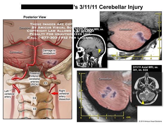 amicus,injury,cerebellar,cerebrum,cerebellum,posterior,inferior,arteries,PICA,C1,C2,C3,radiology,MRI