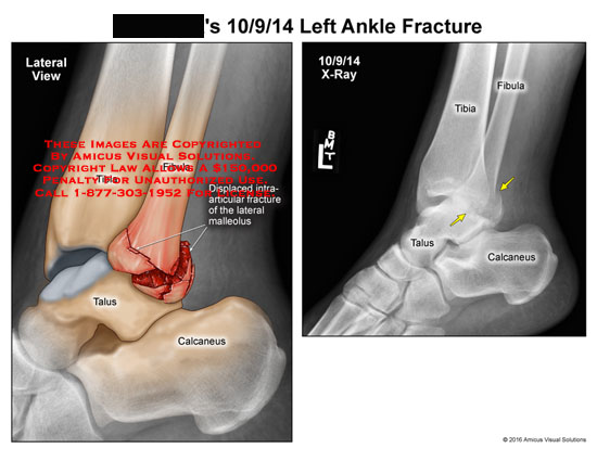 amicus,injury,ankle,fracture,x-ray,lateral,tibia,fibula,talus,calcaneus,displaced,intra-articular,maleolus