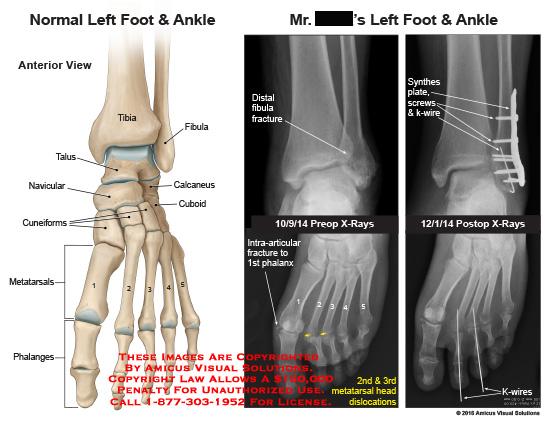 amicus,injury,anatomy,foot,ankle,anterior,x-ray,tibia,fibula,talus,navicular,calcaneus,cuboid,cuneiform,metatarsals,phalanges
