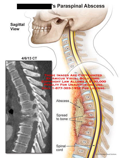 amicus,injury,paraspinal,abscess,spine,sagittal,view,spread,bone,spinal,cord,ct,vertebrae,t6,t7