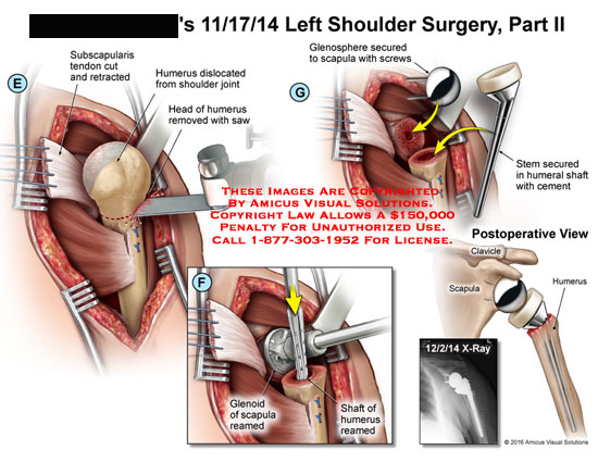 amicus,surgery,shoulder,subscapularis,tendon,cut,retracted,humerus,dislocated,joint,head,removed,saw,glenosphere,secured,scapula,screws,stem,shaft,cement,postoperative,clavicle,glenoid,rearmed