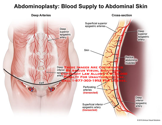 amicus,anatomy,abdominoplasty,blood,supply,abdominal,skin,deep,arteries,cross-section,superior,epigastric,artery,inferior,superficial,skin,perforating,transected,deep,rectus,abdominis,muscles,