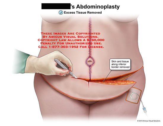 amicus,surgery,abdominoplasty,abdomen,abdominal,excess,tissue,removed,skin,inferior,border