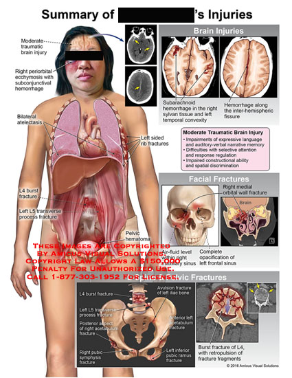amicus,injuries,moderate,traumatic,brain,periorbital,acchymosis,subconjunctival,hemorrhage,bilateral,atelectasis,burst,fracture,transverse,process,rib,pelvic,subarachnoid,sylvan,tissue,temporal,convexity,inter-hemispheric,fissure,impairments,expressive,language,auditory-verbal,narrative,memory,selective,attention,response,regulation,impaired,constructional,ability,spatial,discrimination,facial,medial,orbital,wall,air-fluid,level,maxillary,sinus,complete,opacification,fronal,l4,retropulsion,fragm