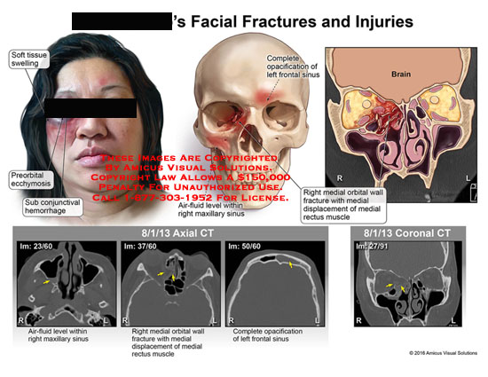 amicus,injury,head,face,facial,skull,fracture,soft,tissue,swelling,preorbital,ecchymosis,sub-conjunctival,hemorrhage,complete,opacification,frontal,sinus,air-fluid,level,maxillary,medial,orbital,wall,displacement,rectus,muscle,axial,coronal,ct