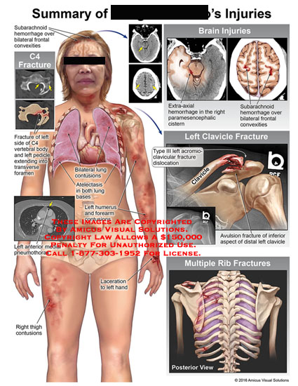 amicus,injuries,brain,clavicle,rib,muliple,c4,fracture,subarachnoid,hemorrhage,bilateral,frontal,convexities,extra-axial,paramesencephalic,cistern,type,iii,acromio-clavicular,dislocation,avulsion,inferior,distal,thigh,contusions,laceration,anterior,medial,pneumothorax,humerus,forearm,ateicectasis,lung,vertebral,body,pedicle,transverse,foramen