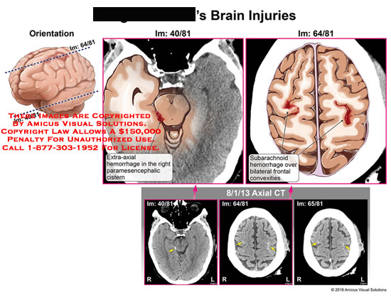 amicus,injury,head,brain,extra-axial,hemorrhage,paramesencephallic,cistern,bilateral,frontal,convexities,axial,ct