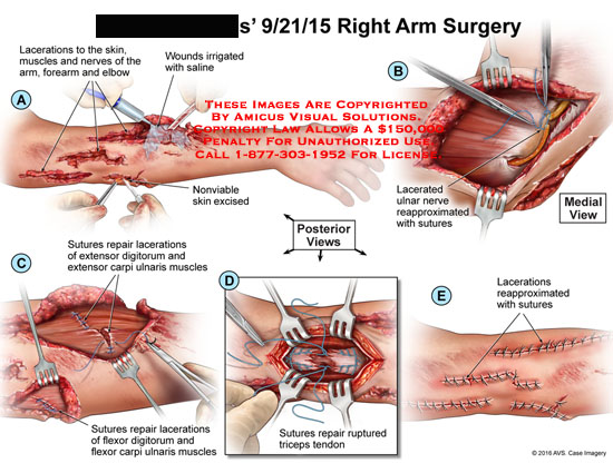 amicus,surgery,arm,lacerations,skin,muscles,nerves,forearm,elbow,wounds,irrigated,saline,nonviable,excised,ulnar,reapproximated,sutures,posterior,medial,repair,extensor,digitorum,carpi,triceps,ruptured,tendon