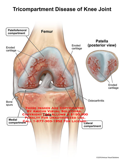 amicus,injury,tricompartment,disease,knee,joint,femur,patellofemoral,compartment,eroded,cartilage,osteoarthritis,lateral,bone,spurs,tibia