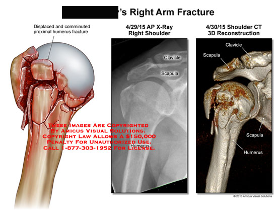 amicus,injury,arm,fracture,displaced,comminuted,proximal,humerus,x-ray,shoulder,clavicle,scapula,ct,3d,reconstruction