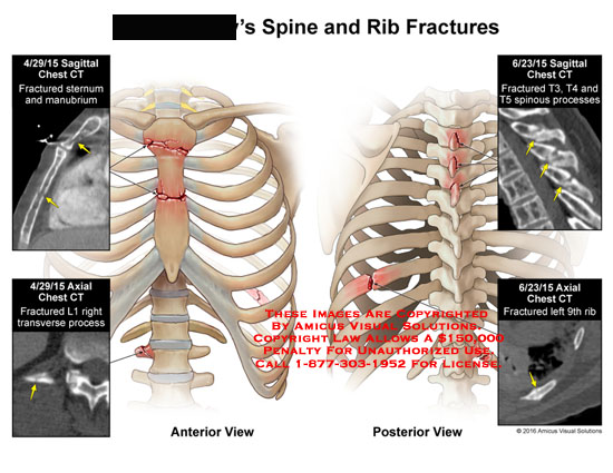 amicus,injury,spine,rib,fracture,ct,saggital,axial,chest,sternum,manubrium,l1,transverse,process,9th,t3,t4,t5,spinous