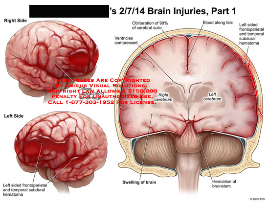 amicus,injury,brain,diffuse,subarachnoid,hemorrhage,frontoparietal,temporal,subdural,hematoma,swelling,cerebrum,herniation,brainstem,ventricles,compressed,obliteration,cerebral,sulci,blood,falx,frontoparietal,hematoma