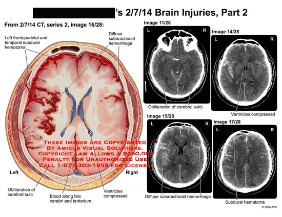 amicus,injury,brain,ct,frontoparietal,temporal,subdural,hematoma,diffuse,subarachnoid,hemorrhage,obliteration,cerebral,sulci,ventricles,compressed,diffuse,hemorrhage,blood,falx,cerebri,tentorium