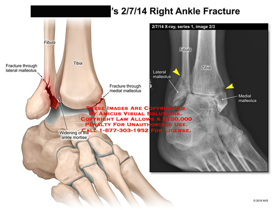 amicus,injury,ankle,fracture,fibula,tibia,malleolus,widening,mortise,medial,lateral