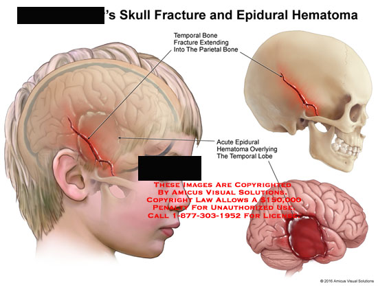amicus,injury,skull,fracture,epidural,hematoma,temporal,bone,extending,parietal,acute,overlying,lobe