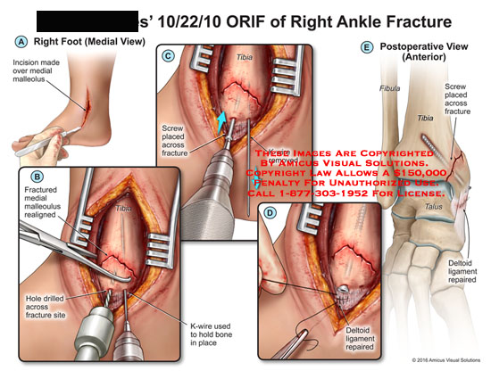 amicus,surgery,orif,ankle,fracture,incision,medial,malleolus,realigned,hole,drilled,site,k-wire,bone,screw,removed,deltoid,ligament,repaired,tibia,postoperative,anterior,fibula,talus,deltoid