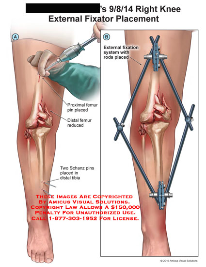 amicus,surgery,leg,knee,external,fixator,placement,patella,femur,tibia,fixation,system,rods,placed,pin,proximal,distal,schanz,reduced