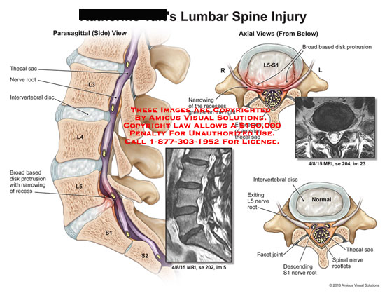 amicus,injury,lumbar,spine,parasagittal,axial,thecal,sac,nerve,root,intervertebral,disc,broad,based,disk,protrusion,narrowing,recess,effacement,anterior,l5,facet,joint,descending,s1,spinal,rootlets