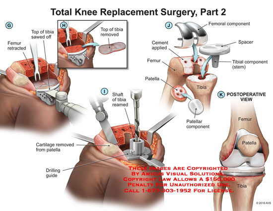 amicus,surgery,knee,replacement,total,tibia,top,sawed,femur,retracted,shaft,reamed,cartilage,removed,patella,drilling,guide,femoral,component,spacer,cement,applied,stem,postoperative