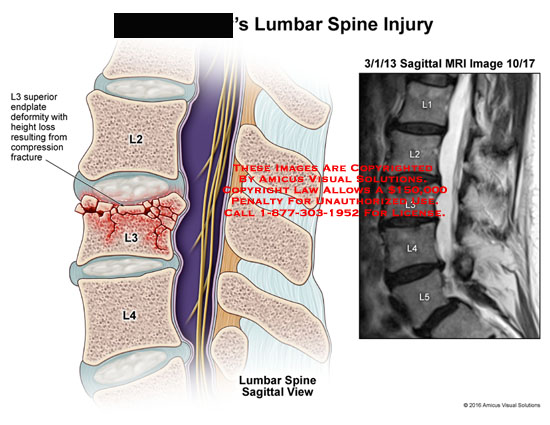 amicus,injury,lumbar,spine,l3,superior,endplate,deformity,height,loss,resulting,compression,fracture,mri,saggital