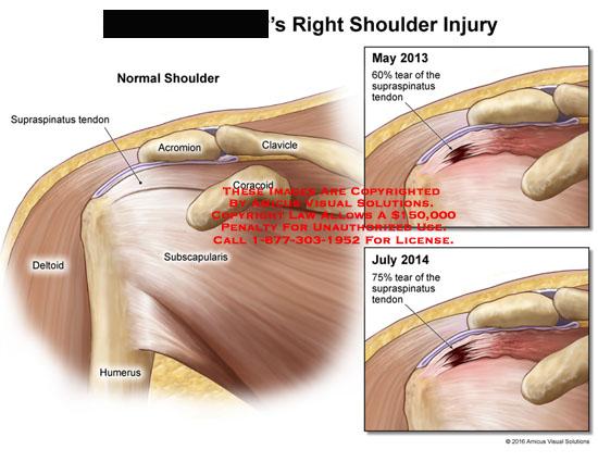 amicus,injury,shoulder,supraspinatus,tendon,acromion,clavicle,coracoid,subscapularis,deltoid,humerus,normal,tear