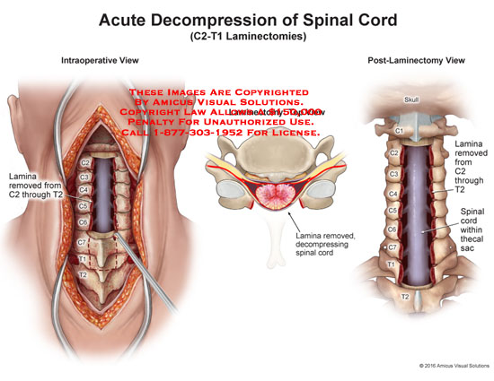 amicus,surgery,medical,laminectomy,c2,t1,lamina,remove,t2,decompressing,spinal,cord,intraoperative,post-laminectomy,thecal,sac
