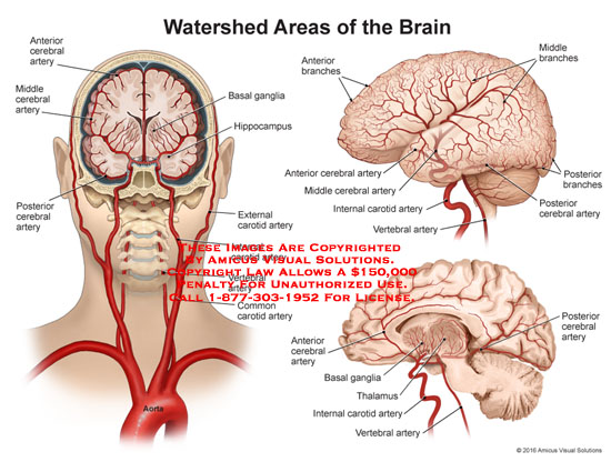 amicus,anatomy,watershed,brain,anterior,cerebral,artery,middle,posterior,basal,ganglia,hippocampus,external,carotid,internal,vertebral,common,branches,middle,thalamus